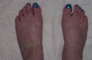 my ugly feet modelling the turquoise nail varnish